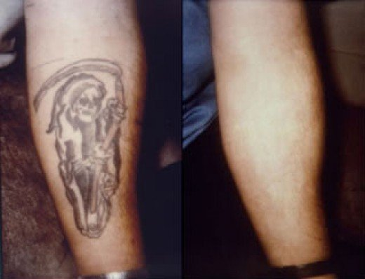 Tattoo removal has been around for centuries and as of today, modern laser
