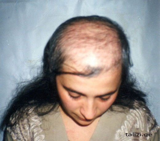 Выпадают волосы в 42 года