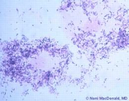 vaginalniy-bakterioz-i-zachatie