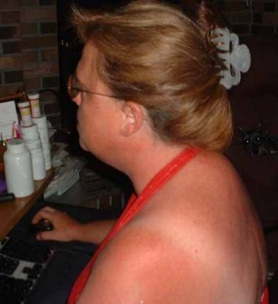 One Of My Prior Sunburns in 2002. I Hated Sunscreen, Hats, And Glasses!
