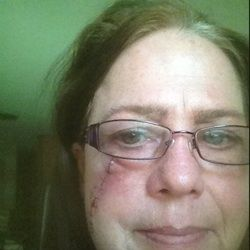 What Melanoma Did To Me... Here I Am A Few Days After The Surgery & Reconstruction