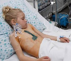 Kids still suffering in Ukraine because of Chernobyl reactor explosion.