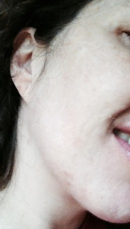 Here is my photo after 2 IPL treatments