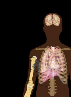 Main symptoms of cancer metastasis.