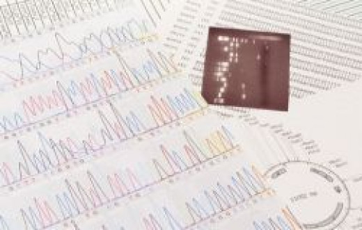 DNA Sequence chart