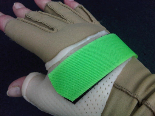 The hard cast was necessary in the first instance.  The glove was to help reduce swelling and make the cast more comfortable.