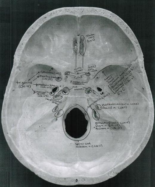 Cranial Nerves in Skull- Superior Aspect