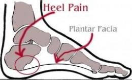 plantar fascia pain arch