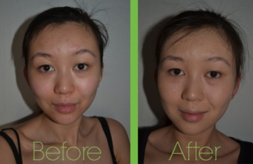 I Found A BareMinerals Night Treatment Before and After Picture! :)