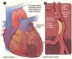 Heart Attack - Symptoms, Diagnosis and Treament of Heart Attack