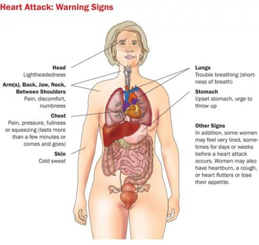 Heart Attack in women claims more female lives than cancer.