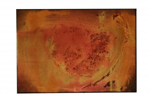 The cancer is burnished away.  Acrylic and gold leaf on small canvas  Amanda Seyderhelm, 2004
