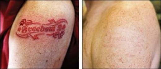 President and CEO of Freedom-2, Martin Schmieg, sports the world's first removable tattoo.