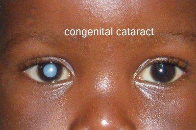 Congenital Cataracts