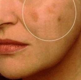 Eliminar manchas en el rostro