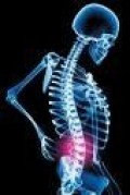 Back Pain Relief: Use the Emotional Freedom Techniques (EFT)