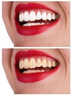 cara memutihkan gigi anda dengan cepat dan murah