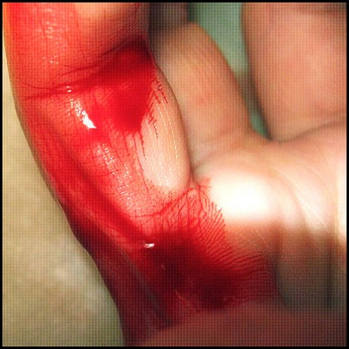 Glass can slice you badly.