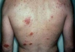 Guide to Reversing, Treating, and Curing Eczema