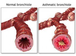 Notice the mucus in the asthmatic bronchial tubes versus the healthy.