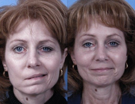 Older woman with Bell's palsy