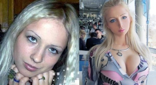 Before and after surgery picture of Valeria Lukyanova