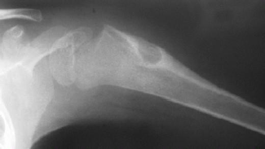 Osteoblastoma of proximal humerus
