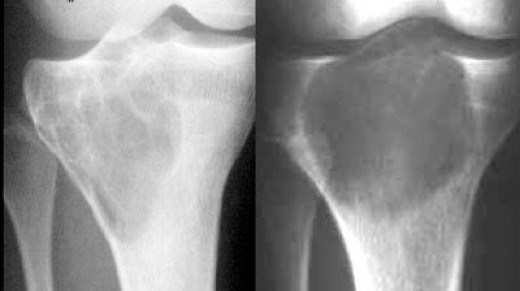 Multiloculated lesion with a very characteristic appearance (honeycomb-like pattern) (left); Pure lytic lesion (right)