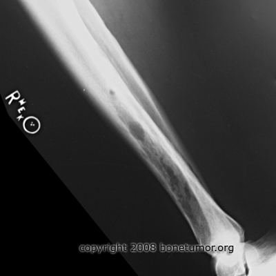 Hemangioma of tibia
