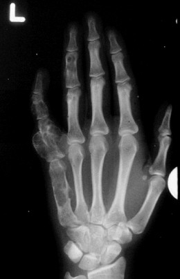 Multiple enchondromas are present in this radiograph of the left hand in a patient with Ollier disease. Lesions for unknown rea