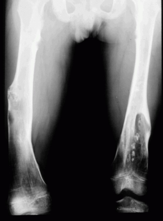 """The left distal femur is widened with an """"Erlenmeyer"""" deformity. The left femur is also shortened relative to the right. The med"""