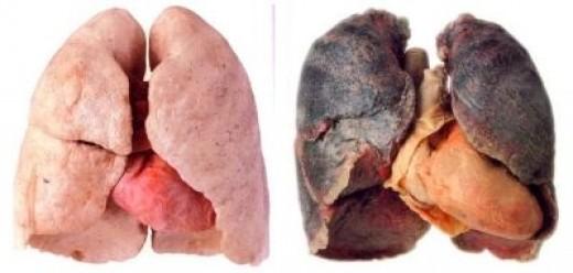 A Smoker's Lungs