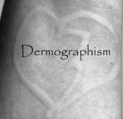 Dermographism - The Skin Writing Allergy