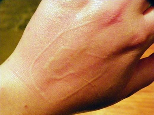 What Is Dermatographia?