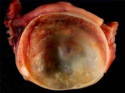 Benign cyst on ovaries