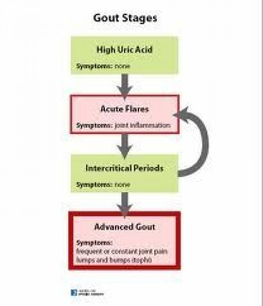 Gout Stages