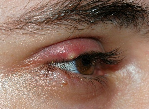 A stye on the edge of the eyelid