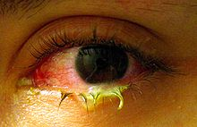 Bacterial conjuctivitis