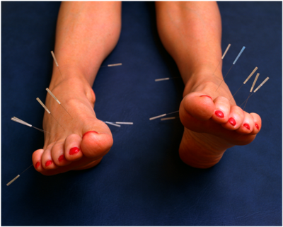 Acupuncture of blisters?