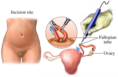 Postpartum tubaligation