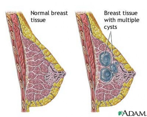 Representation of fibrocystic change in comparison with a normal breast.