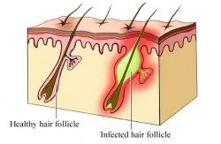 Blackhead Causes