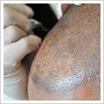 Cosmetic Tattooing for hair