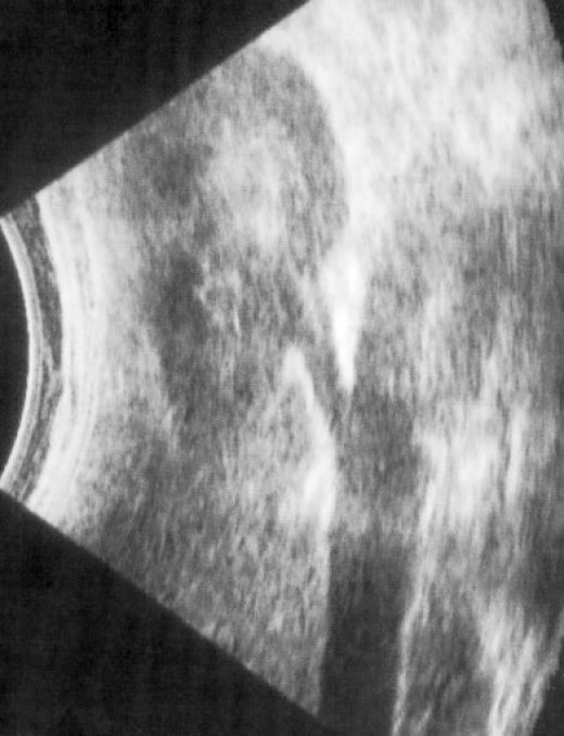 An Ultrasound scan uses sound waves to give a picture of inside the body without the need for surgery.