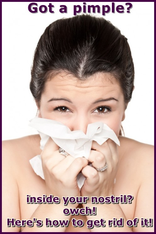 Find out how to get rid of a pimple inside your nose with our helpful tips!