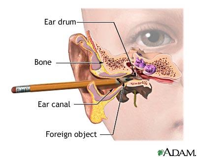 Ear peace