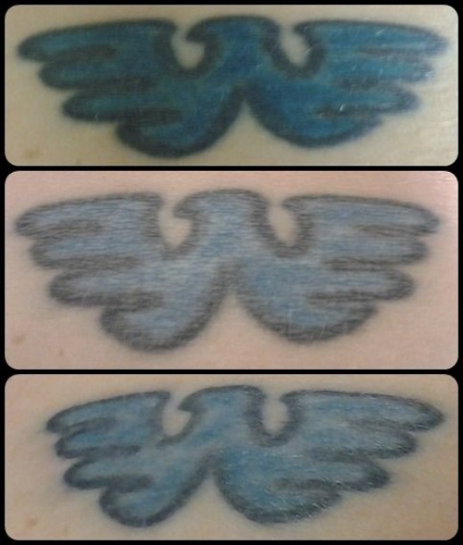 This blue tattoo is fading very well with the help of the ruby laser, a 694nm wavelength.