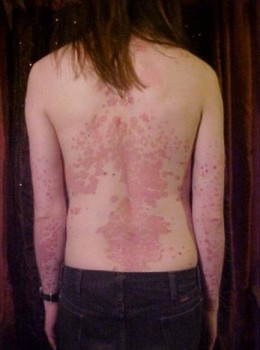 pictures of psoriasis