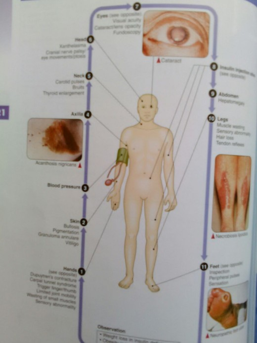 examination of patient with Diabetes