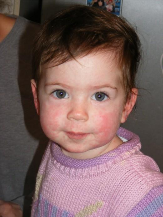 face rash